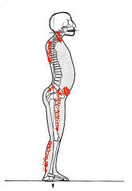 Un model de compensation postural suite à une césarienne