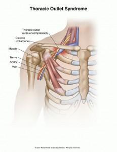 vue antérieur du plexus brachial