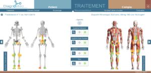 Schéma musculosquelettique